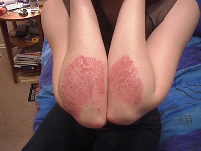 Atopichesky la dermatitis a los niños sudokrem