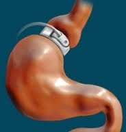 Gastric band hypnotherapy is it a magic pill?